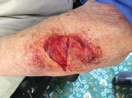 Skin tear wound 1