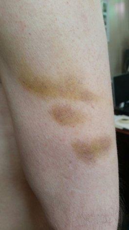 bruise ACC job 1
